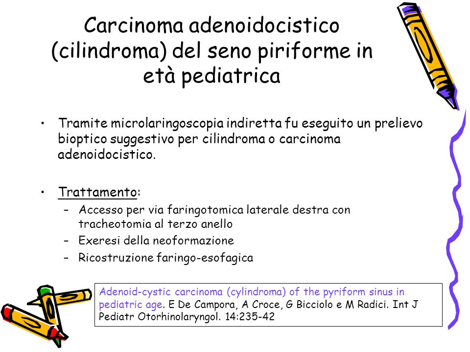 Carcinoma adenoidocistico (cilindroma) del seno piriforme in età pediatrica Tramite microlaringoscopia indiretta fu eseguito un prelievo bioptico sugg