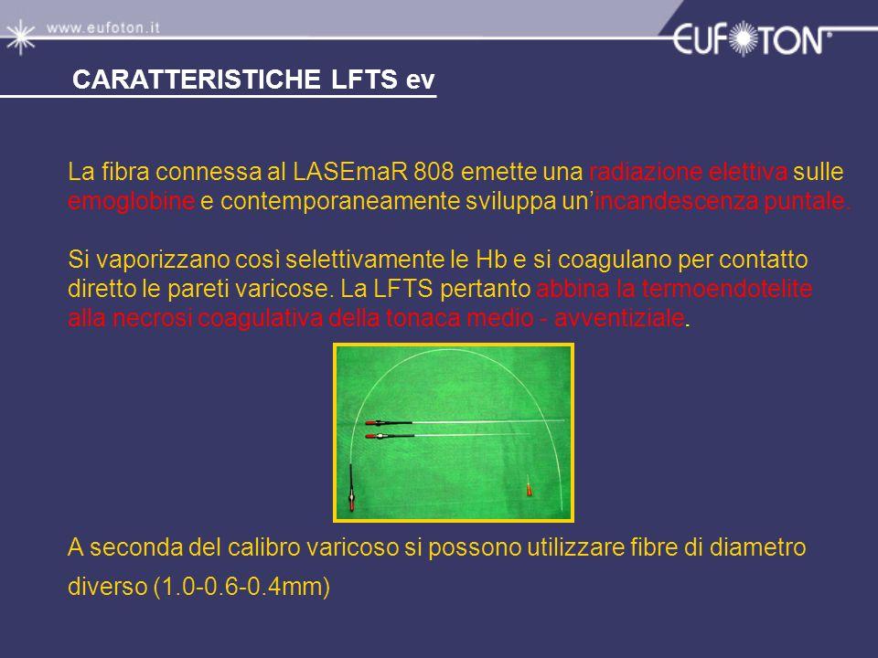 La fibra connessa al LASEmaR 808 emette una radiazione elettiva sulle emoglobine e contemporaneamente sviluppa unincandescenza puntale. Si vaporizzano