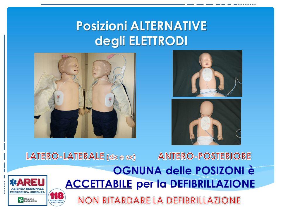 Posizioni ALTERNATIVE degli ELETTRODI OGNUNA delle POSIZONI è ACCETTABILE per la DEFIBRILLAZIONE