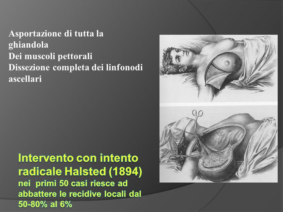 Asportazione di tutta la ghiandola Dei muscoli pettorali Dissezione completa dei linfonodi ascellari