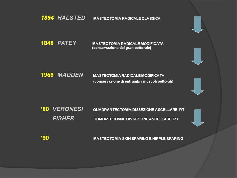 1894 HALSTED MASTECTOMIA RADICALE CLASSICA 1848 PATEY MASTECTOMIA RADICALE MODIFICATA (conservazione del gran pettorale) 1958 MADDEN MASTECTOMIA RADIC