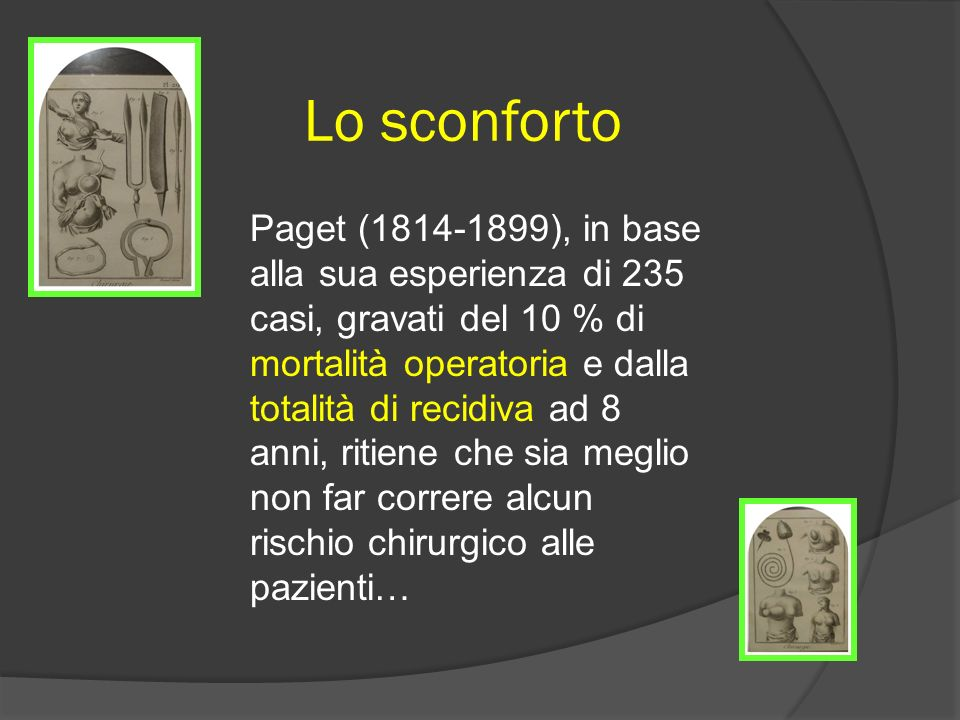 Lo sconforto Paget (1814-1899), in base alla sua esperienza di 235 casi, gravati del 10 % di mortalità operatoria e dalla totalità di recidiva ad 8 an