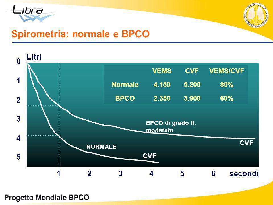 5 0 1 2 3 4 123456 CVF BPCO di grado II, moderato NORMALE secondi Litri VEMSCVFVEMS/CVF Normale4.1505.20080% BPCO2.3503.90060% Spirometria: normale e