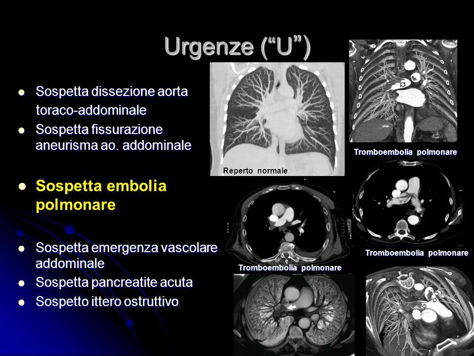 Urgenze (U ) Sospetta dissezione aorta toraco-addominale Sospetta dissezione aorta toraco-addominale Sospetta fissurazione aneurisma ao.addominale Sospetta fissurazione aneurisma ao.addominale Sospetta embolia polmonare Sospetta embolia polmonare Sospetta emergenza vascolare addominale Sospetta pancreatite acuta Sospetta pancreatite acuta Sospetto ittero ostruttivo Sospetto ittero ostruttivo A.M.S.