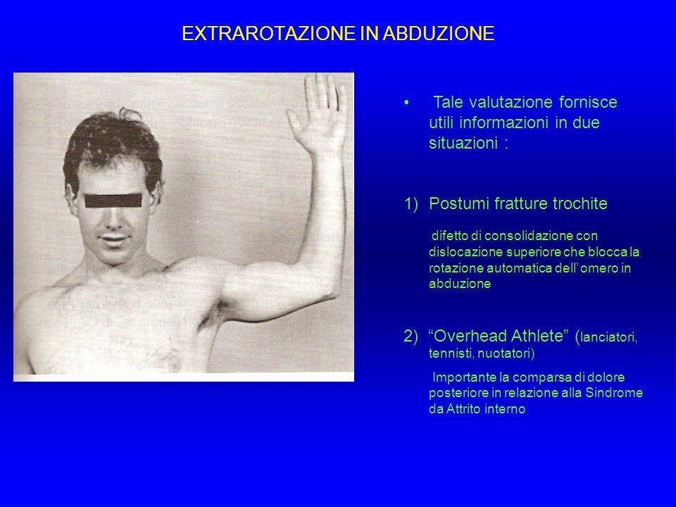 EXTRAROTAZIONE IN ABDUZIONE Tale valutazione fornisce utili informazioni in due situazioni : 1)Postumi fratture trochite difetto di consolidazione con