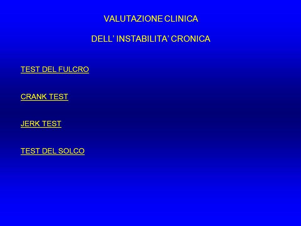 VALUTAZIONE CLINICA DELL INSTABILITA CRONICA TEST DEL FULCRO CRANK TEST JERK TEST TEST DEL SOLCO