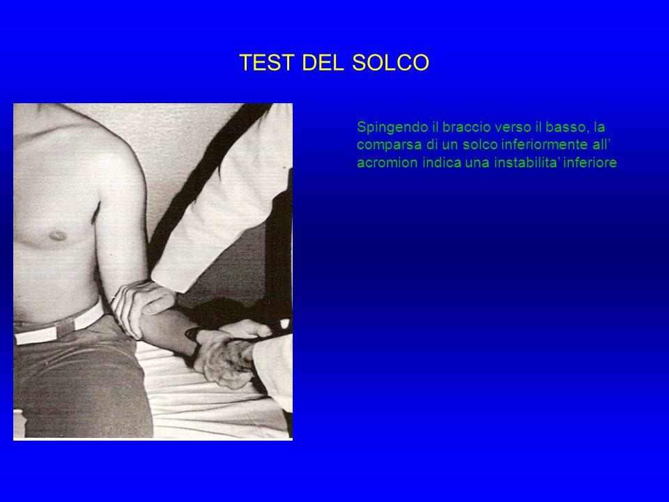 TEST DEL SOLCO Spingendo il braccio verso il basso, la comparsa di un solco inferiormente all acromion indica una instabilita inferiore