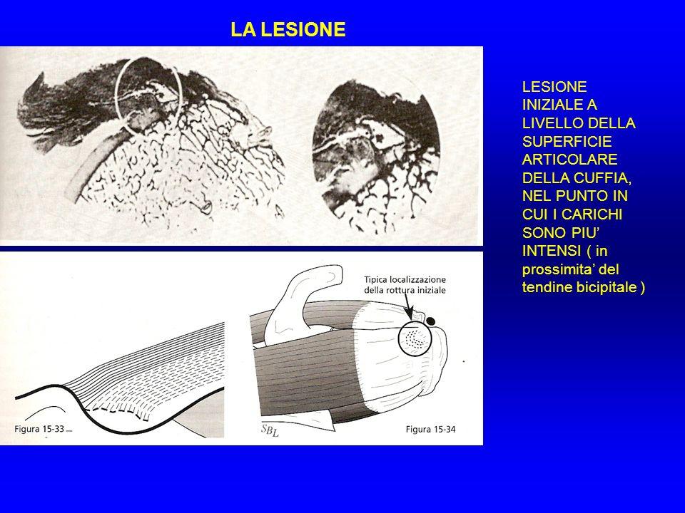 LA LESIONE LESIONE INIZIALE A LIVELLO DELLA SUPERFICIE ARTICOLARE DELLA CUFFIA, NEL PUNTO IN CUI I CARICHI SONO PIU INTENSI ( in prossimita del tendin