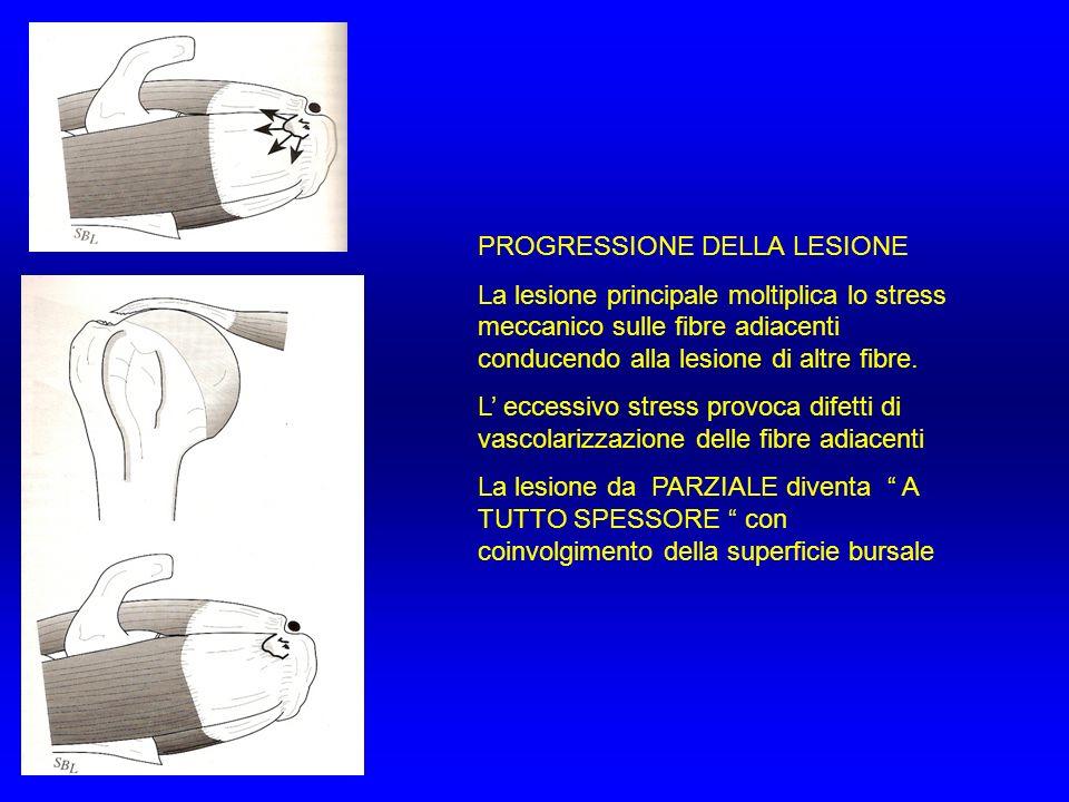 PROGRESSIONE DELLA LESIONE La lesione principale moltiplica lo stress meccanico sulle fibre adiacenti conducendo alla lesione di altre fibre. L eccess
