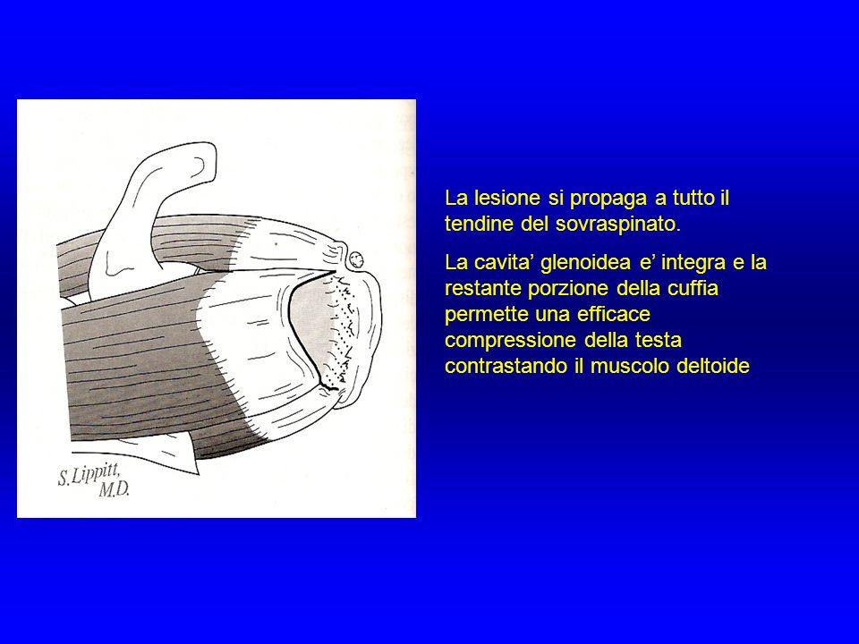 La lesione si propaga a tutto il tendine del sovraspinato. La cavita glenoidea e integra e la restante porzione della cuffia permette una efficace com