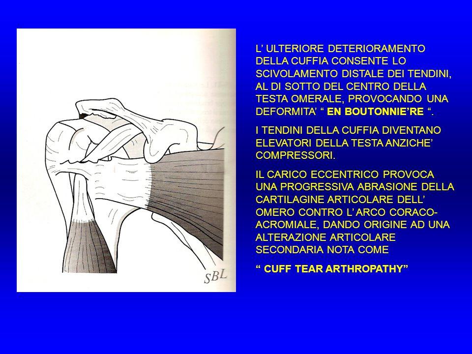 L ULTERIORE DETERIORAMENTO DELLA CUFFIA CONSENTE LO SCIVOLAMENTO DISTALE DEI TENDINI, AL DI SOTTO DEL CENTRO DELLA TESTA OMERALE, PROVOCANDO UNA DEFOR