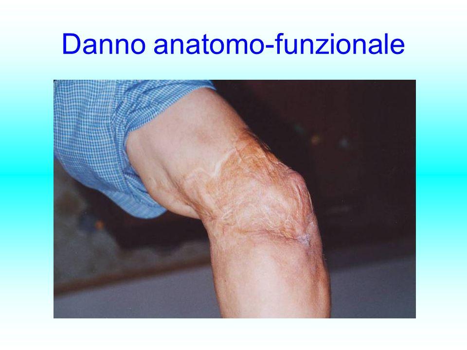 Danno anatomo-funzionale