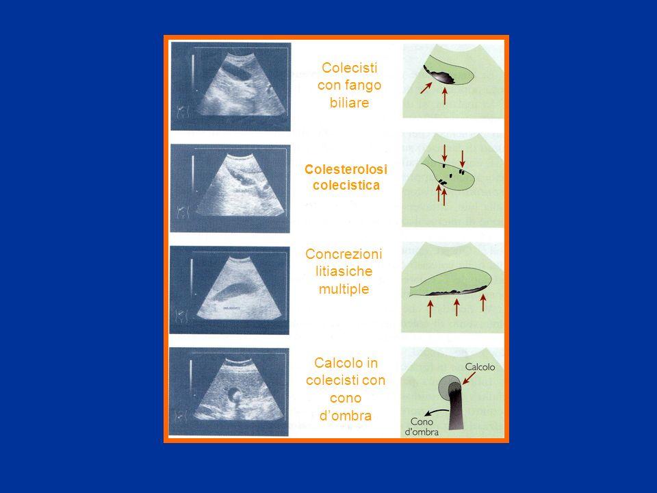 Colecisti con fango biliare Colesterolosi colecistica Concrezioni litiasiche multiple Calcolo in colecisti con cono dombra