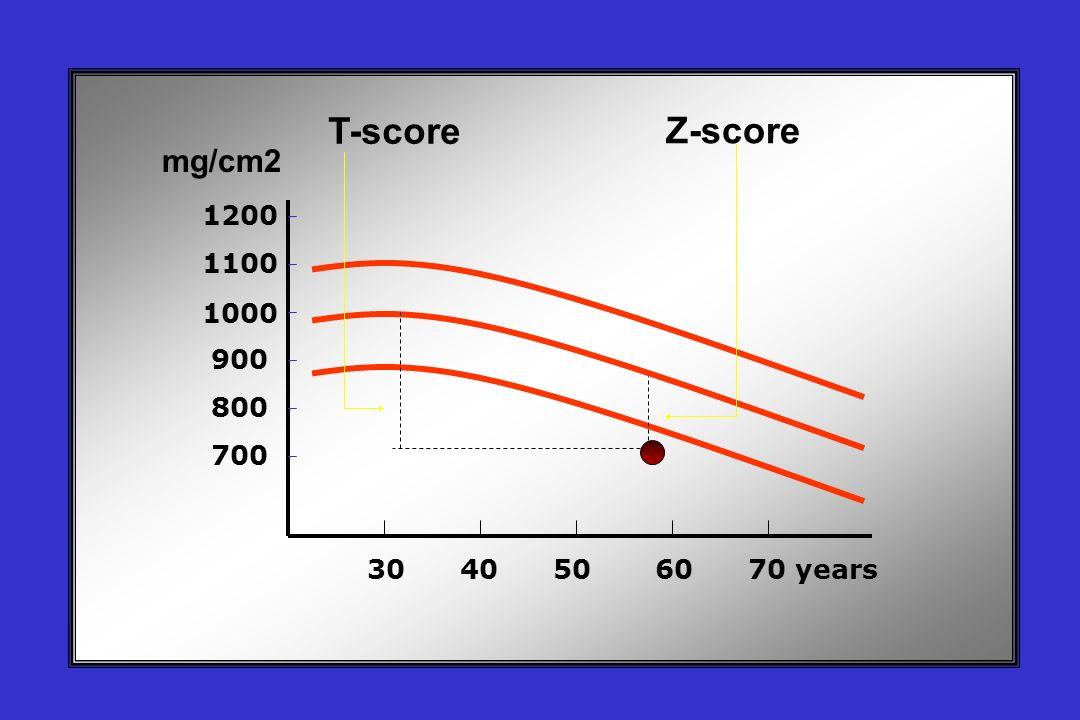 30 40 50 60 70 years 1200 1100 1000 900 800 700 T-score Z-score mg/cm2