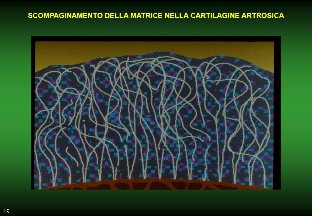 19 SCOMPAGINAMENTO DELLA MATRICE NELLA CARTILAGINE ARTROSICA