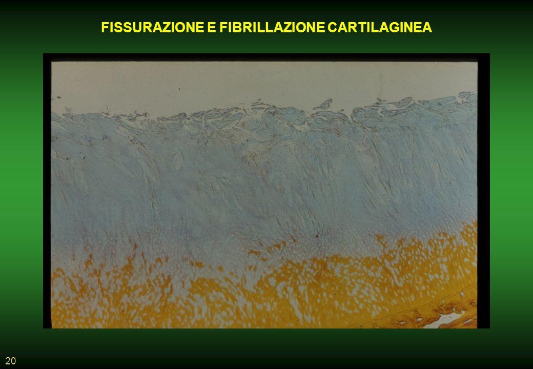 20 FISSURAZIONE E FIBRILLAZIONE CARTILAGINEA