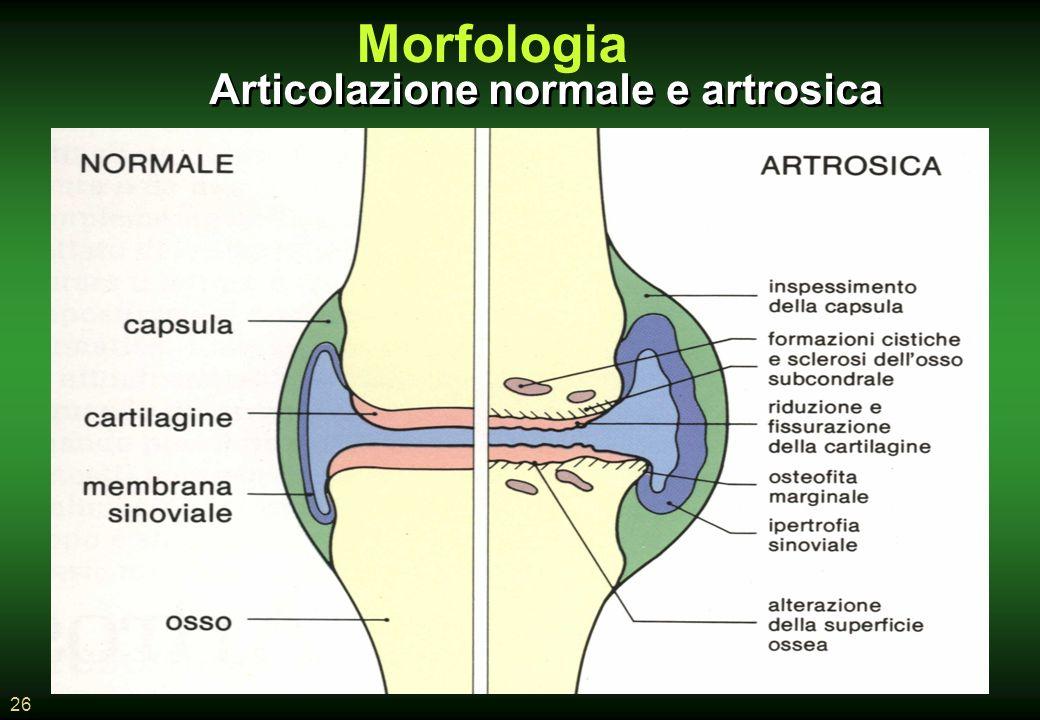 26 Articolazione normale e artrosica Morfologia