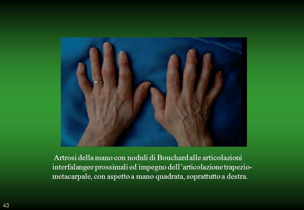 43 Artrosi della mano con noduli di Bouchard alle articolazioni interfalangee prossimali ed impegno dellarticolazione trapezio- metacarpale, con aspetto a mano quadrata, soprattutto a destra.