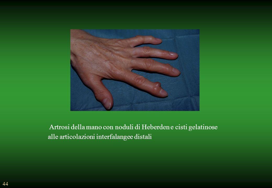 44 Artrosi della mano con noduli di Heberden e cisti gelatinose alle articolazioni interfalangee distali