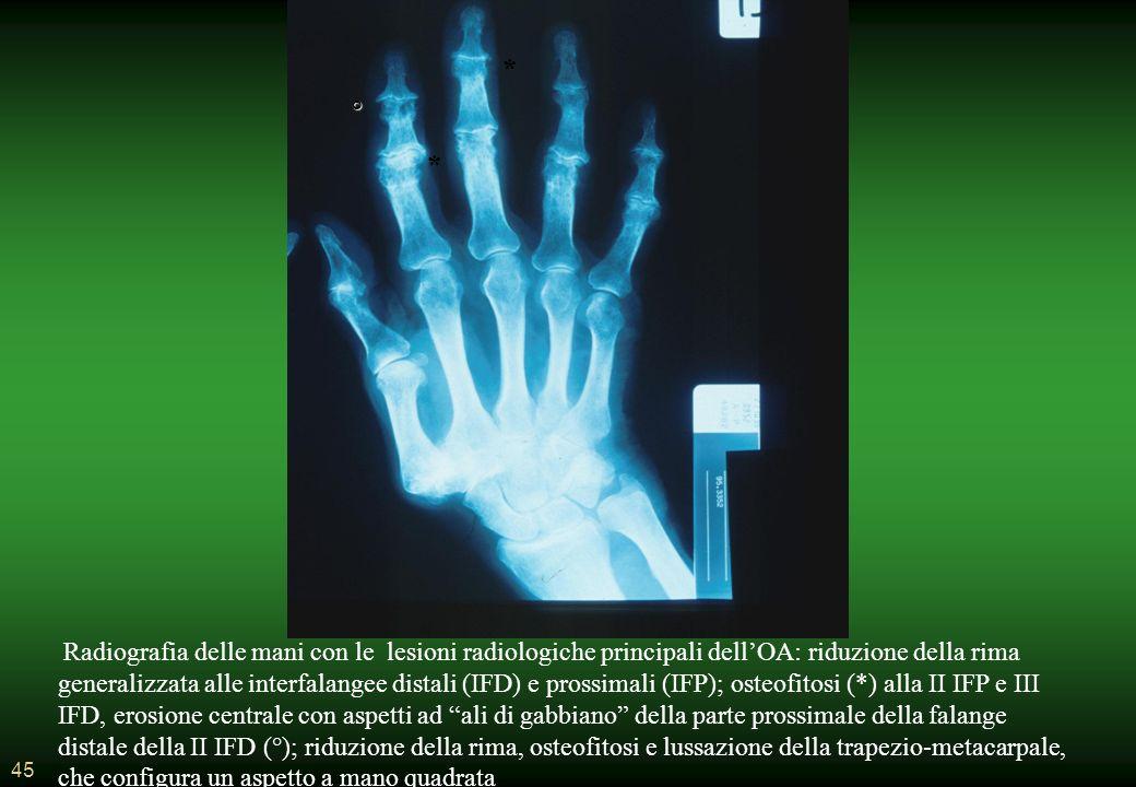 45 Radiografia delle mani con le lesioni radiologiche principali dellOA: riduzione della rima generalizzata alle interfalangee distali (IFD) e prossimali (IFP); osteofitosi (*) alla II IFP e III IFD, erosione centrale con aspetti ad ali di gabbiano della parte prossimale della falange distale della II IFD (°); riduzione della rima, osteofitosi e lussazione della trapezio-metacarpale, che configura un aspetto a mano quadrata * * °
