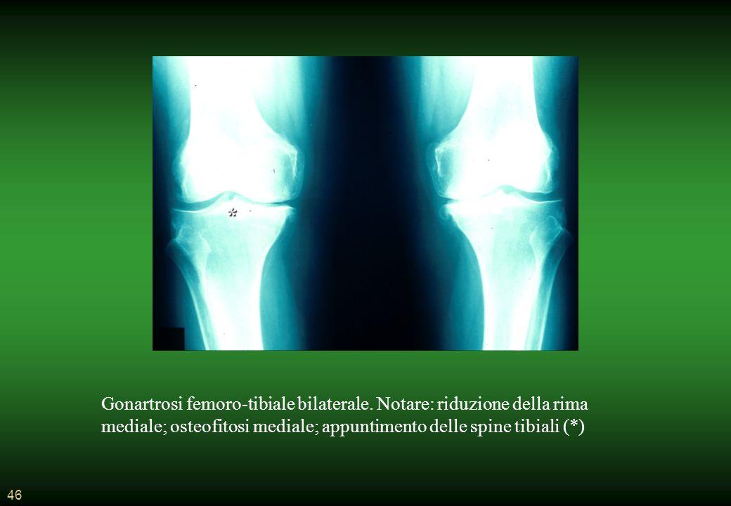 46 Gonartrosi femoro-tibiale bilaterale.