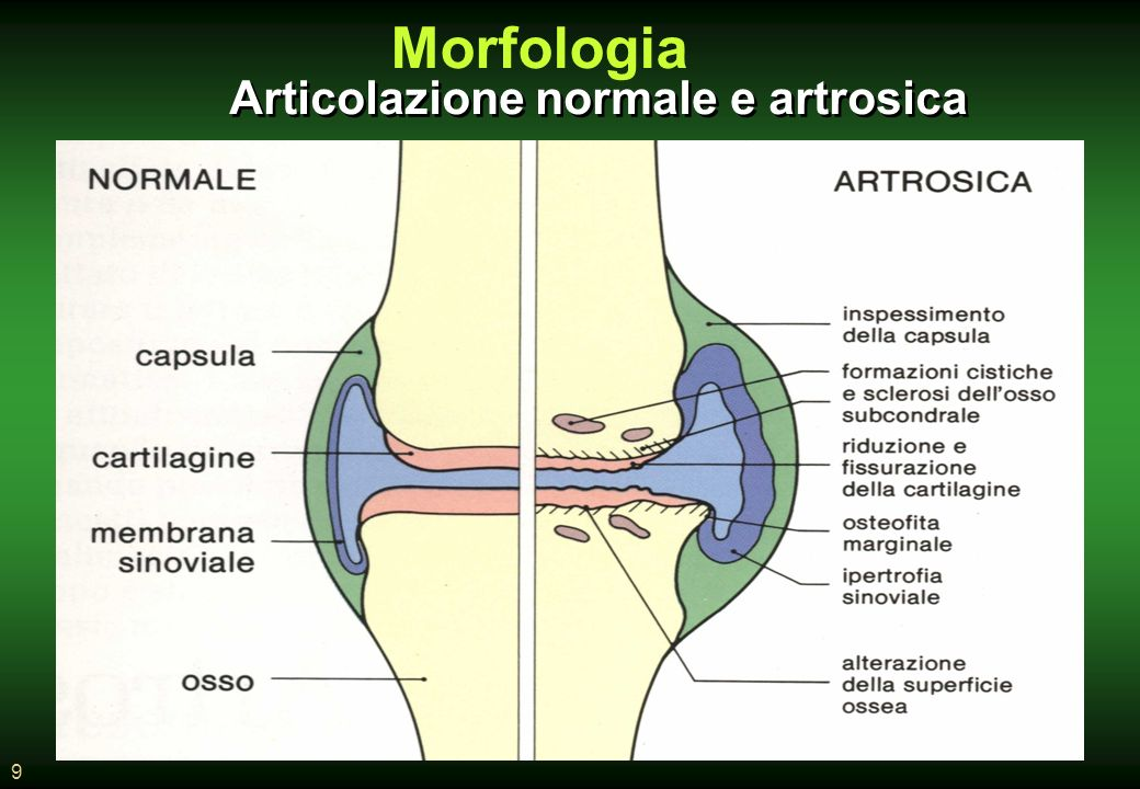 9 Articolazione normale e artrosica Morfologia