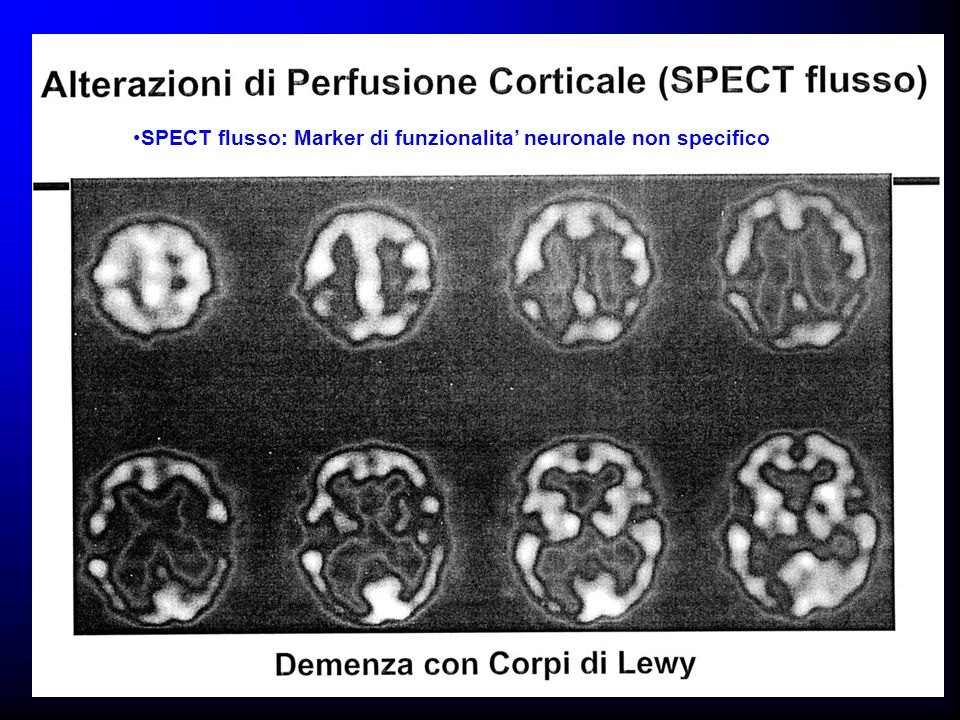 SPECT flusso: Marker di funzionalita neuronale non specifico