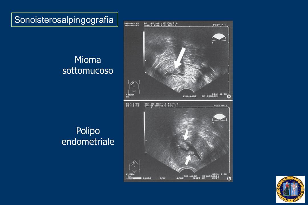 Sonoisterosalpingografia Mioma sottomucoso Polipo endometriale