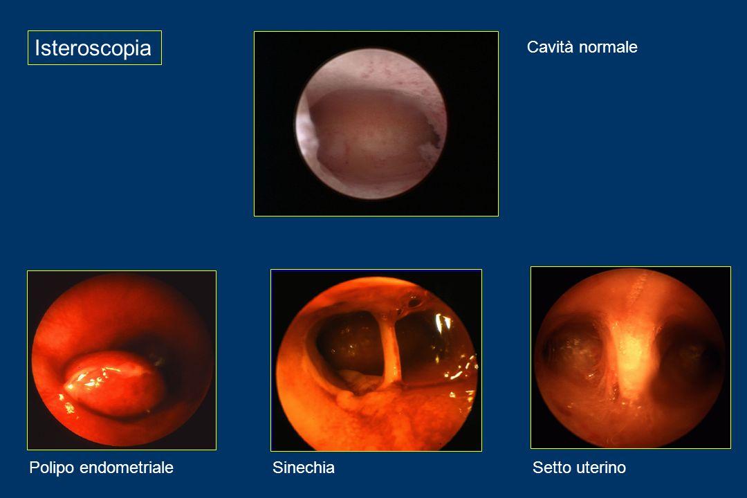 Isteroscopia Cavità normale Polipo endometrialeSinechiaSetto uterino