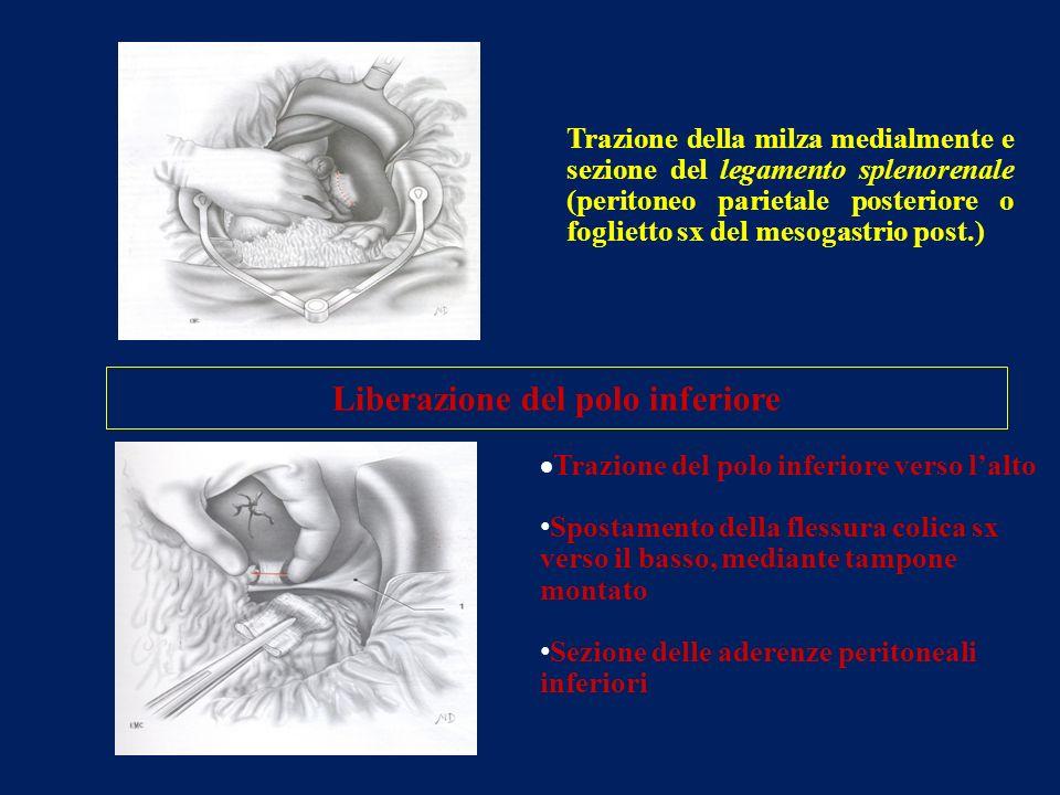 Trazione della milza medialmente e sezione del legamento splenorenale (peritoneo parietale posteriore o foglietto sx del mesogastrio post.) Trazione d