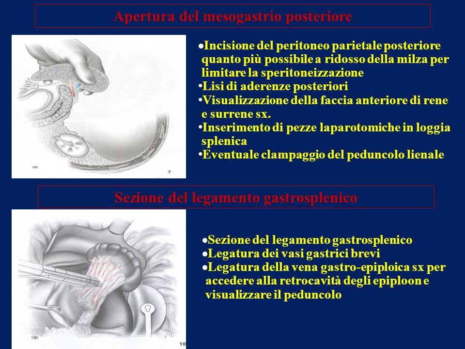 Apertura del mesogastrio posteriore Incisione del peritoneo parietale posteriore quanto più possibile a ridosso della milza per limitare la speritonei