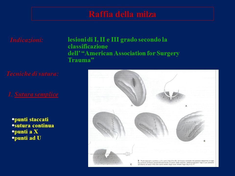 Raffia della milza Indicazioni: lesioni di I, II e III grado secondo la classificazione dell American Association for Surgery Trauma Tecniche di sutur