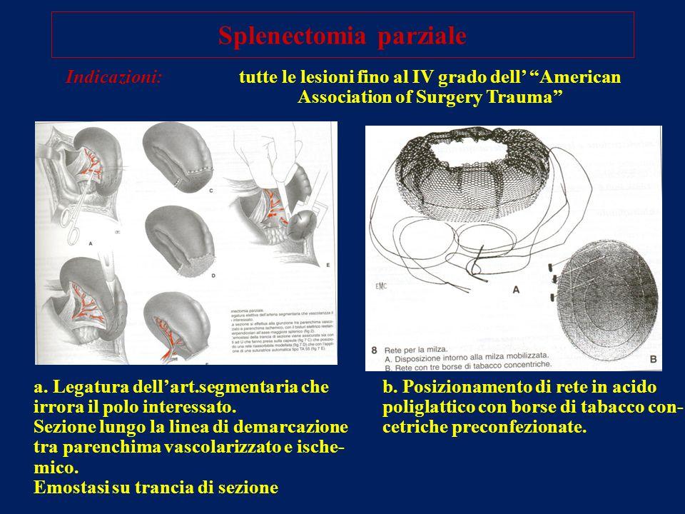 Splenectomia parziale Indicazioni:tutte le lesioni fino al IV grado dell American Association of Surgery Trauma a. Legatura dellart.segmentaria che ir