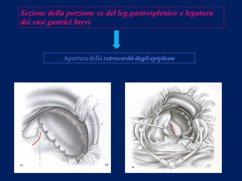 Sezione della porzione sx del leg.gastrosplenico e legatura dei vasi gastrici brevi Apertura della retrocavità degli epiploon