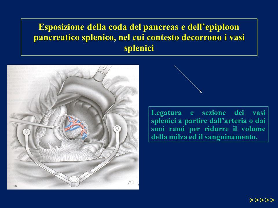 Esposizione della coda del pancreas e dellepiploon pancreatico splenico, nel cui contesto decorrono i vasi splenici Legatura e sezione dei vasi spleni
