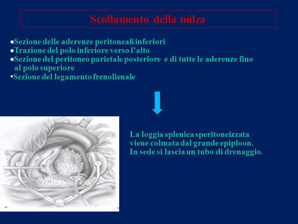 Scollamento della milza Sezione delle aderenze peritoneali inferiori Trazione del polo inferiore verso lalto Sezione del peritoneo parietale posterior