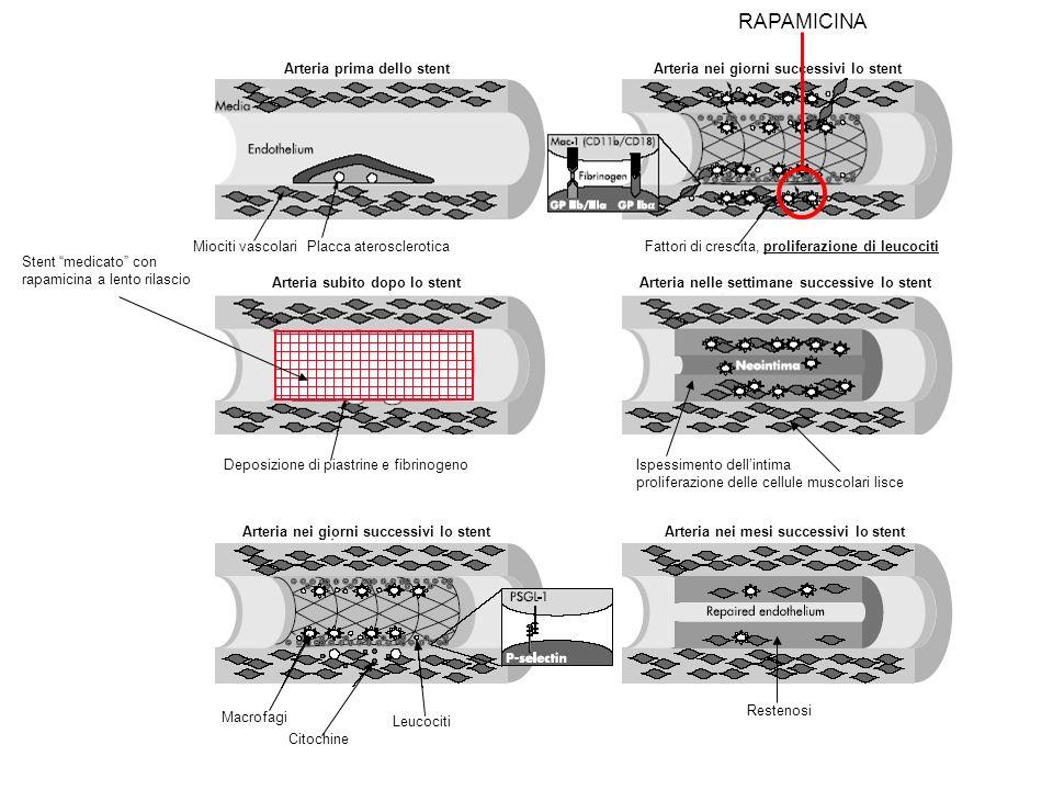 Deposizione di piastrine e fibrinogeno Arteria subito dopo lo stentArteria nelle settimane successive lo stent Ispessimento dellintima proliferazione delle cellule muscolari lisce Arteria nei giorni successivi lo stent Miociti vascolariPlacca aterosclerotica Stent medicato con rapamicina a lento rilascio Arteria nei giorni successivi lo stentArteria nei mesi successivi lo stent Arteria prima dello stent Fattori di crescita, proliferazione di leucociti Macrofagi Leucociti Citochine Restenosi RAPAMICINA