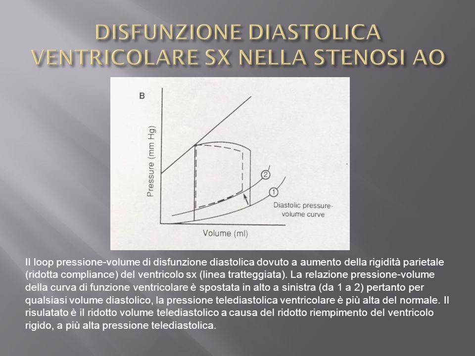 Il loop pressione-volume di disfunzione diastolica dovuto a aumento della rigidità parietale (ridotta compliance) del ventricolo sx (linea tratteggiata).