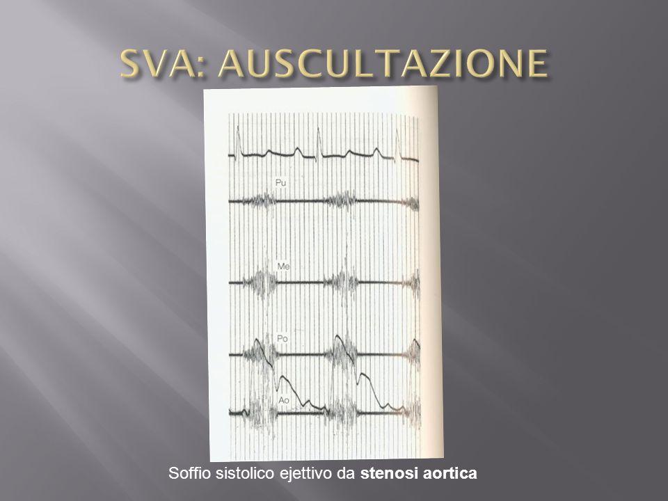Soffio sistolico ejettivo da stenosi aortica
