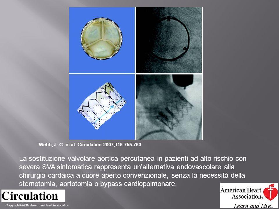 Copyright ©2007 American Heart Association Webb, J. G. et al. Circulation 2007;116:755-763 La sostituzione valvolare aortica percutanea in pazienti ad