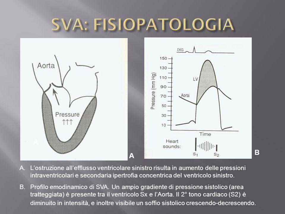 A.Lostruzione allefflusso ventricolare sinistro risulta in aumento delle pressioni intraventricolari e secondaria ipertrofia concentrica del ventricol