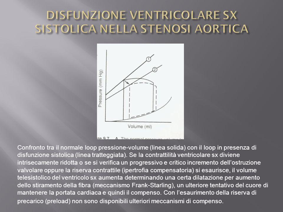 Confronto tra il normale loop pressione-volume (linea solida) con il loop in presenza di disfunzione sistolica (linea tratteggiata). Se la contrattili