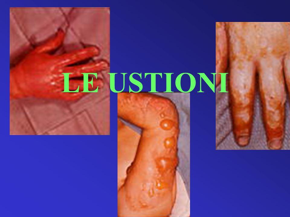 Malattia ustione E la malattia dovuta all azione di alte temperature sulla superficie corporea Consiste nel danno direttamente indotto dall agente termico e nei processi patologici che ne conseguono all intorno delle lesioni ed a livello generale