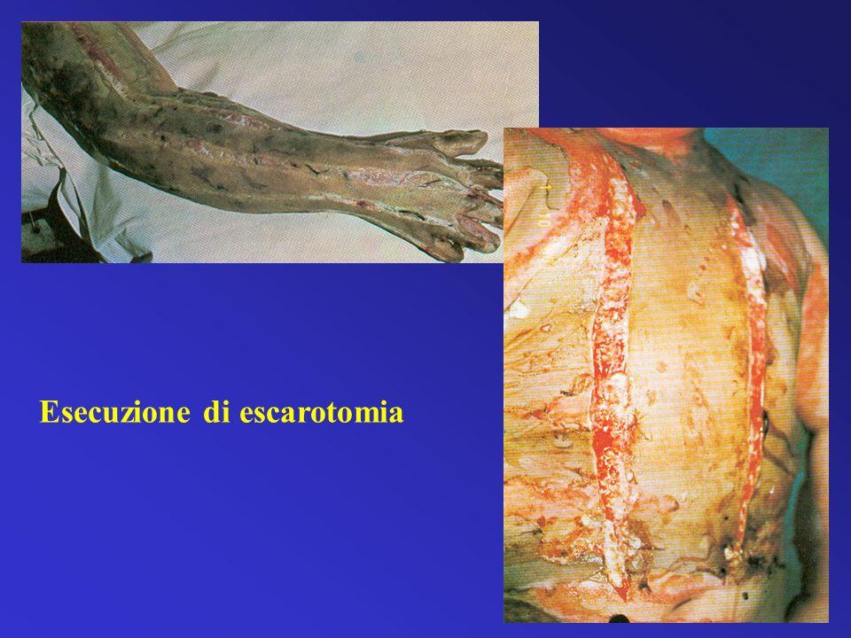 Esecuzione di escarotomia