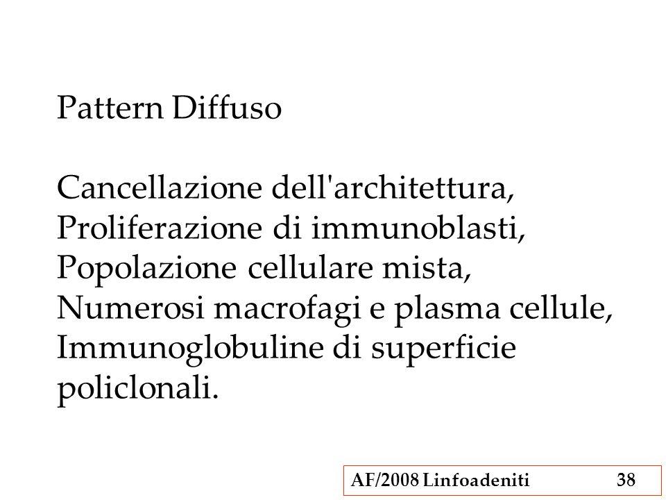 AF/2008 Linfoadeniti38 Pattern Diffuso Cancellazione dell'architettura, Proliferazione di immunoblasti, Popolazione cellulare mista, Numerosi macrofag