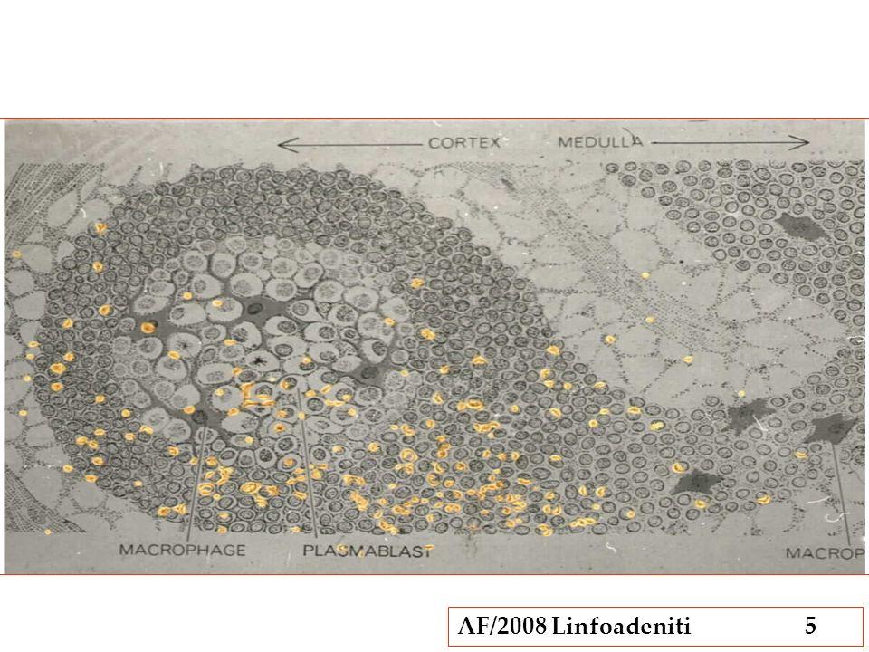 AF/2008 Linfoadeniti56 Linfoadeniti granulomatose Granulomi: aggregati di istiociti simili alle cellule epiteliali (epitelioidi) I granulomi possono contenere una NECROSI CENTRALE talora circoscritta radialmente da istiociti fusati a palizzata, circondati da piccoli linfociti e plasmacellule Si osservano in presenza di: Sostanze che gli istiociti non sono in grado di digerire Una risposta immunitaria T mediata.