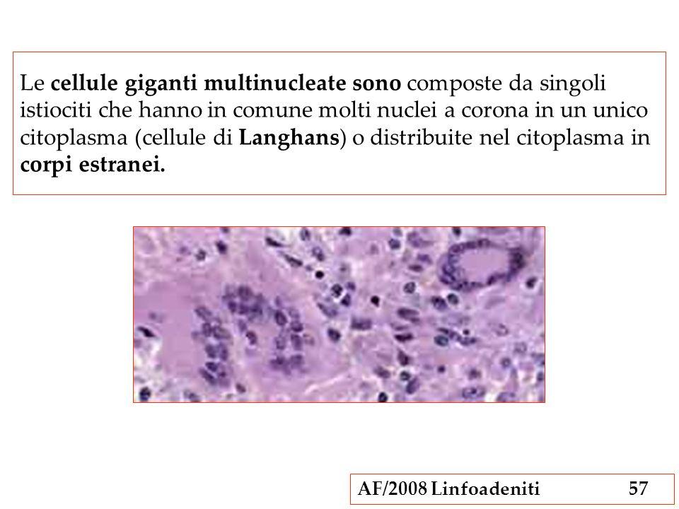 AF/2008 Linfoadeniti57 Le cellule giganti multinucleate sono composte da singoli istiociti che hanno in comune molti nuclei a corona in un unico citop