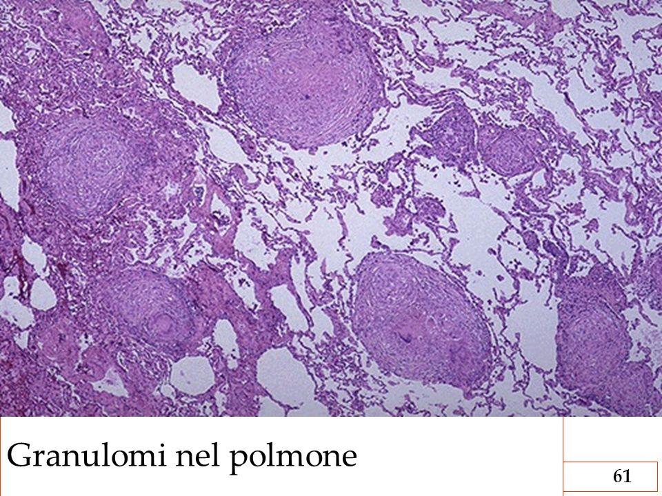 AF/2008 Linfoadeniti61 Granulomi nel polmone