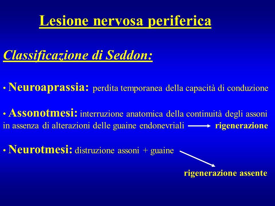 Lesione nervosa periferica Classificazione di Seddon: Neuroaprassia: perdita temporanea della capacità di conduzione Assonotmesi: interruzione anatomi