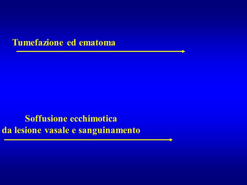 Tumefazione ed ematoma Soffusione ecchimotica da lesione vasale e sanguinamento